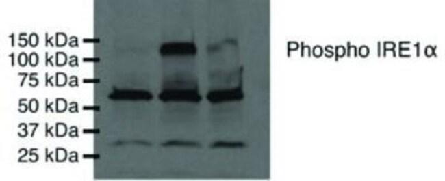anti-IRE1 alpha (p Ser724), Polyclonal, Novus Biologicals:Antibodies:Primary